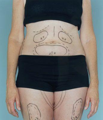 Operasyon  • Op. Dr. Battal, göbekte meydana gelen deformasyonların derecelerine ve şekillerine göre uygulanan tekniklerin değiştiğini söylüyor. Göbekte çatlak ve sarkma yoksa sadece hafif bir yağlanma varsa, liposuction, yani yağ emme yöntemi uygulanıyor. Liposuction yönteminde küçük deliklerden karına girip ince borularla yağlar alınıyor. Hemen arkasından hastaya bir korse giydiriliyor. Hasta aynı gün veya ertesi gün hastaneden çıkabiliyor. Liposuction yönteminin avantajları hiç ameliyat izinin ve tedavi sonrası hastanın yatma ihtiyacının olmaması ve çabuk iyileşmesi.